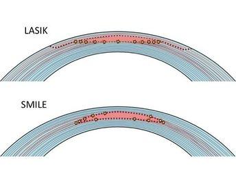 Smile The Latest Laser Surgery Technology 187 Turismiweb